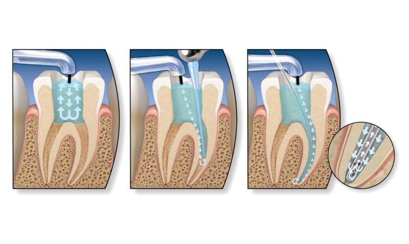 Девитальная депульпация зубов