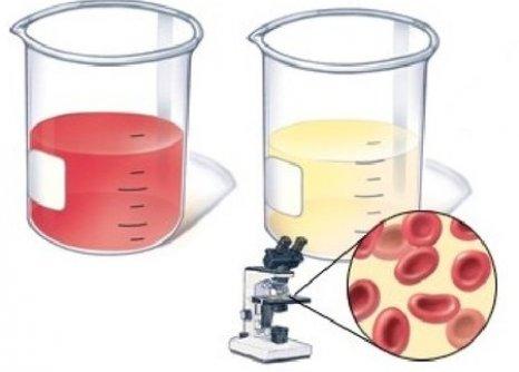 содержание крови в моче