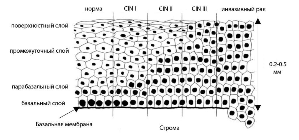 Слои клеток при дисплазии