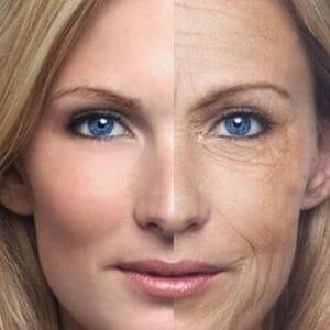 На пол лица старение кожи