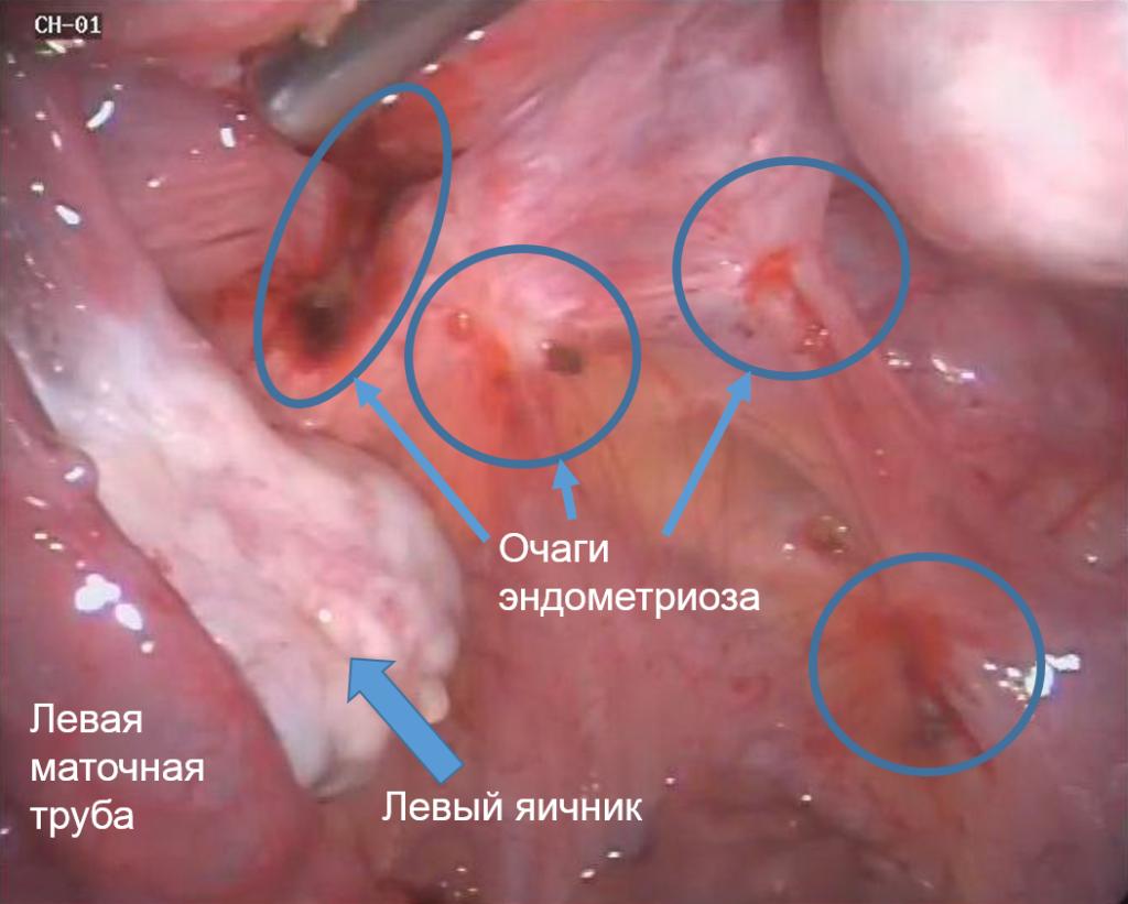 Очаги эндометриоза фото