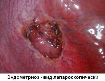 Эндометриоз матки