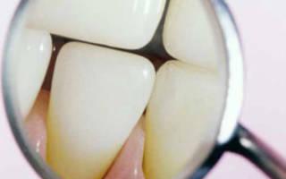 Отражение зубов в зеркале