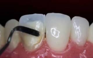 Наращивание зуба композитным виниром