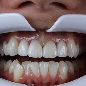Фото зубов