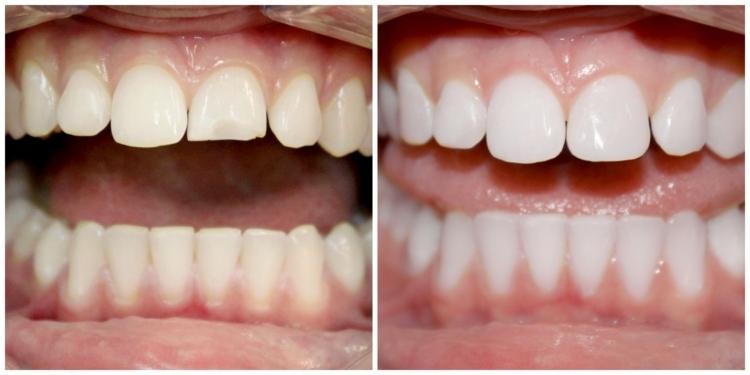 Причины, лечение и профилактика крошения зубов