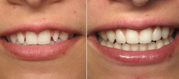 Фото зубов до и после