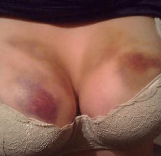 Синяки на груди фото
