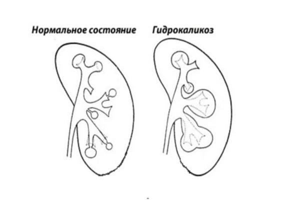Гидрокаликоз почек у взрослых и детей