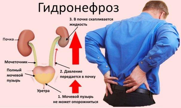 гидронефроз при опущении почек