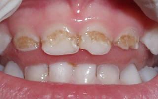Гипоплазия эмали молочных зубов