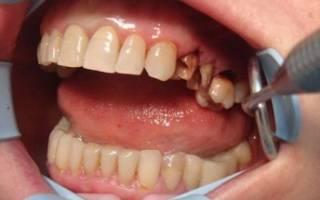 Осложнения после гранулемы