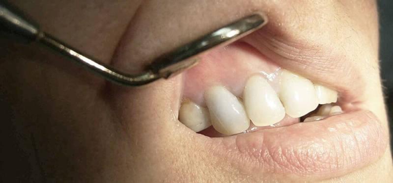 Гранулема зуба на фото
