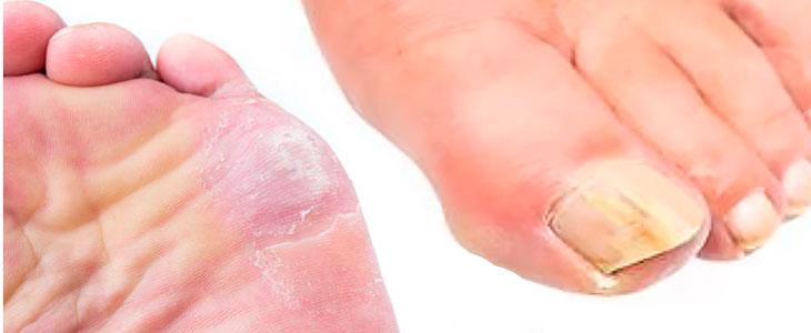 грибок ногтя и стопы на ногах