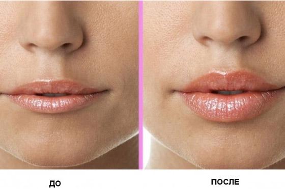 Изменения объма губ после хейлопластики