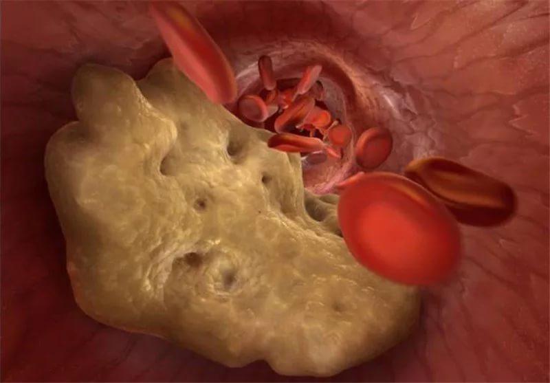 Норма холестерина в крови