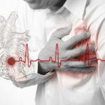 Осложненном ишемией сердца