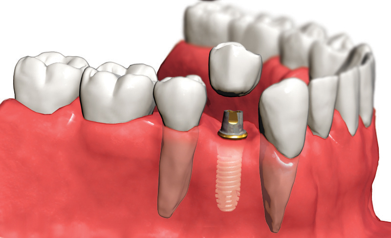 Имплант на месте зуба