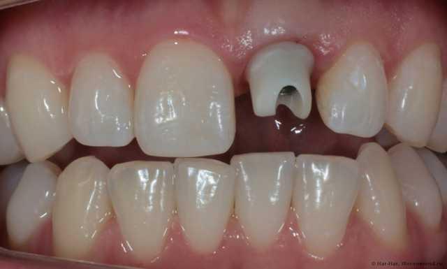 Имптантация зуба