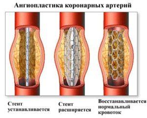 Ангиопластика