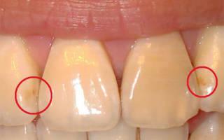 Поверхностный кариес на передних зубах