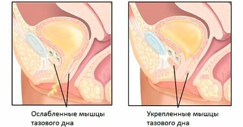 Мышцы таза после упражнений