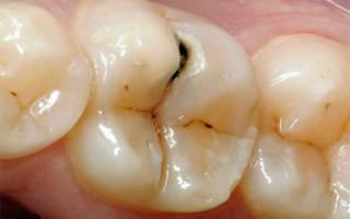 Кариес на зубах