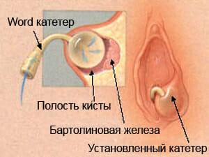 Катетер внутри бартолиновой железы