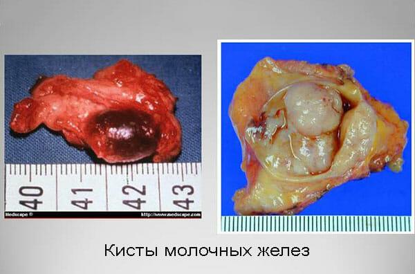 Как выглядит киста молочной железы?