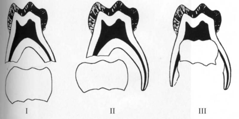 Рассасывание корней зуба