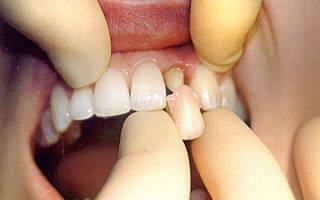 Коронка на передние зубы