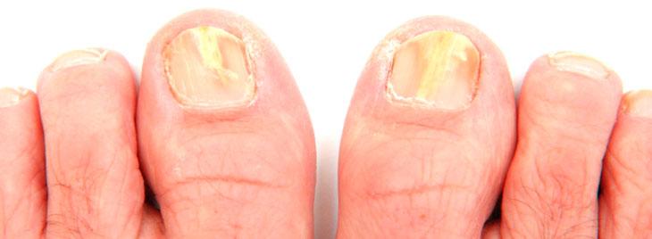 лаки для лечения грибка ногтей
