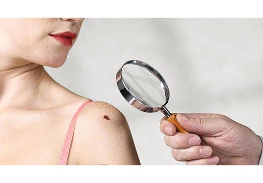 диагностика невуса на плече