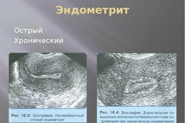 Формы эндометрита на УЗИ