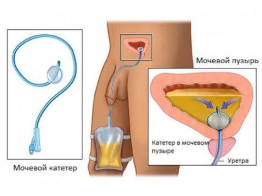 схема катетеризации у мужчин