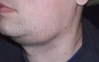 Воспаление лимфоузла под челюстью