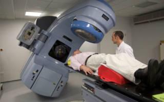 Радиолучевая терапия рака языка