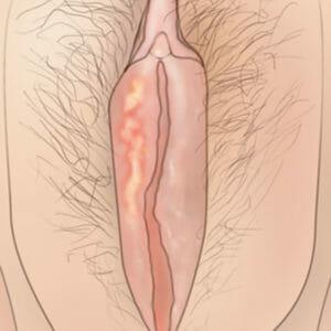 Рисунок малых половых губ