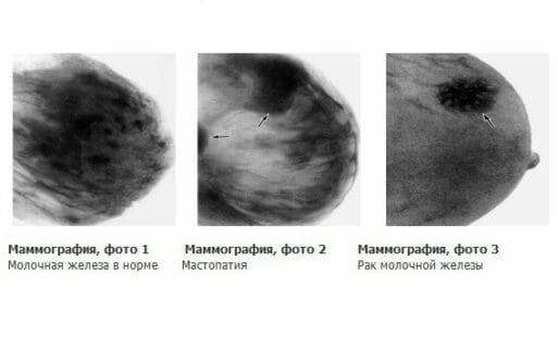Маммограмма фото