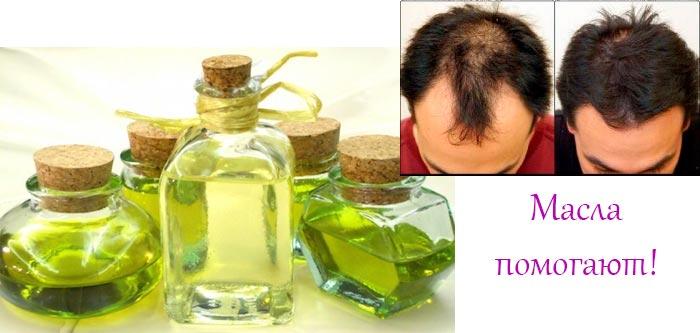 масла помогают от выпадения волос