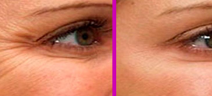 масляные маски от морщин вокруг глаз, фото до и после