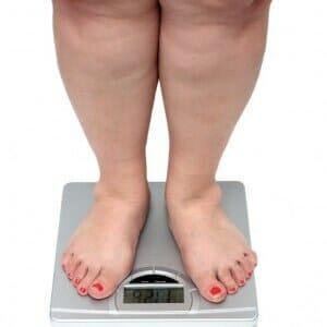 Повышенная масса тела
