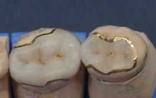 Металлокерамические вкладки на зубы