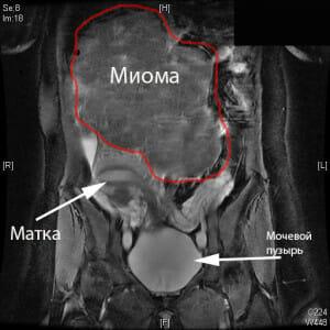 МРТ большой миомы