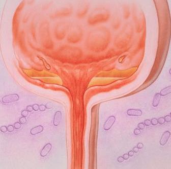 Инфекции мочевого пузыря