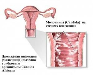 Заболевание молочница