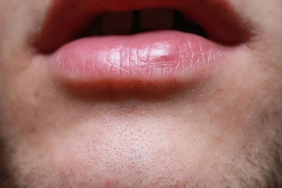 красная точка на нижней губе