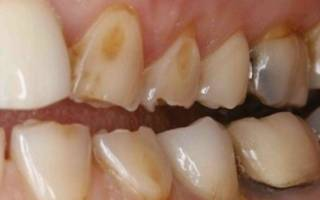 Некариозное поражение зубов