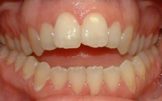 Неровные зубы и неправильный прикус