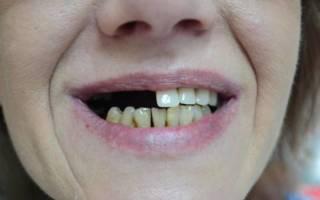 Нет передних зубов